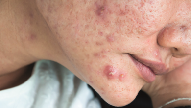 Photo of Secret: Get Rid Of Acne (Pimples) Completely
