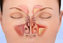 Photo of 18 SIGNS AND SYMPTOMS OF SINUS INFECTIONS