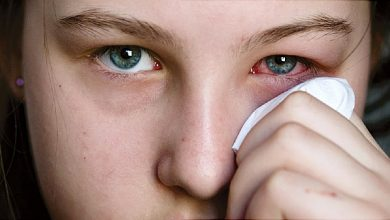 Photo of 10 SIGNS YOU HAVE A BAD EYE