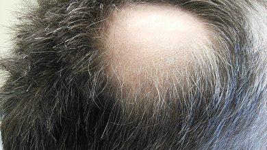 Photo of How To Recover Sudden Hair Loss Naturally