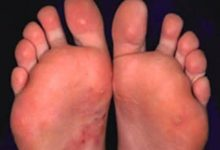 Photo of HOW TO GET RID OF MICROSCOPIC  FOOT FUNGI