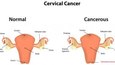 Photo of SYMPTOMS AND POSSIBLE PREVENTION OF CERVICAL CANCER