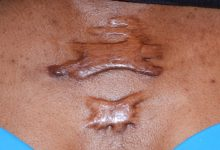 Photo of Causes And Remedy Of keloid You Dont Know