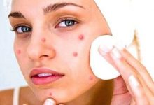 Photo of HOME REMEDIES TO ELIMINATE PIMPLES NATURALLY