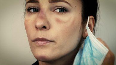 Photo of Remedy: Face Mask Skin Irritation