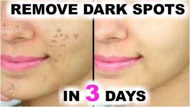 Photo of 4 POWERFUL HOME REMEDY TO REMOVE DARK SPOT IN 3 DAYS