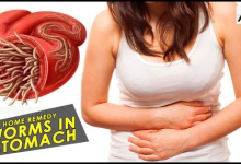 Photo of How To Cure Pains Caused By Intestinal Worms