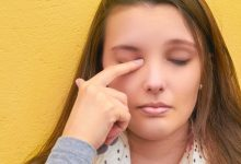 Photo of HOME REMEDIES FOR SORE EYE
