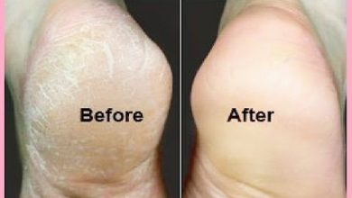 Photo of GET RID OF CRACKED HEELS