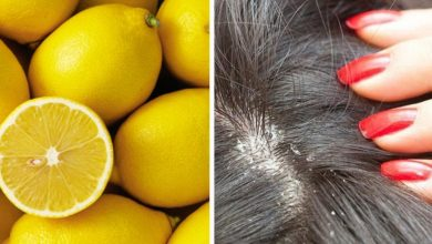 Photo of DANDRUFF TREATMENT WITH LEMON