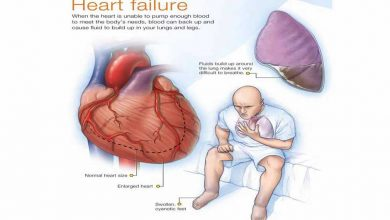Photo of SYMPTOMS AND CAUSES OF HEART FAILURE  YOU DON'T KNOW