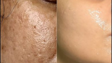 Photo of HOME REMEDIES FOR LARGE PORES
