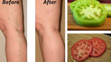 Photo of Home Remedy for Varicose Veins