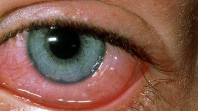 Photo of TIPS TO HELP YOU TACKLE EYE ALLERGIES