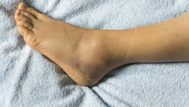 Photo of 5 NATURAL REMEDIES FOR SWOLLEN FEET AND ANKLES