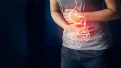 Photo of HOW TO TREAT AND PREVENT APPENDICITIS NATURALLY