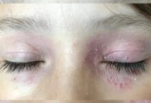 Photo of EASY HOME REMEDIES FOR SOOTHE IRRITATED SKIN AROUND THE EYES