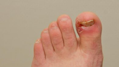 Photo of 5 HOME REMEDIES FOR INGROWN TOENAILS