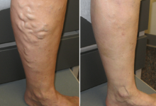 Photo of NATURAL REMEDIES AND PREVENTION OF VARICOSE VEINS