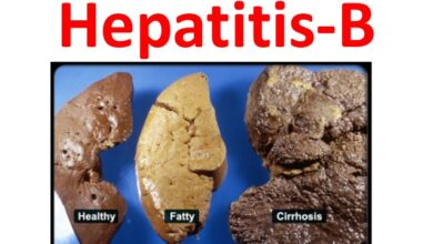 Photo of HEPATITIS – B EVERY THING YOU NEED TO KNOW