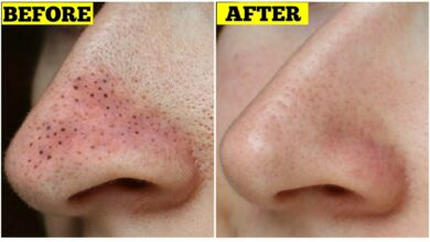 Photo of 5  EFFECTIVE WAYS TO REMOVE BLACK HEADS PIMPLE IN 2 DAYS