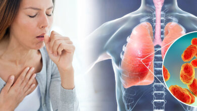 Photo of 5 HOME REMEDIES FOR PNEUMONIA SYMPTOMS