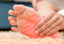Photo of HOME REMEDIES FOR BURNING FEET