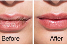 Photo of HOME REMEDY FOR CHAPPED LIPS