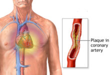 Photo of ACUTE CORONARY SYNDROME: CAUSES, SYMPTOMS, DIAGNOSIS AND MEDICATIONS