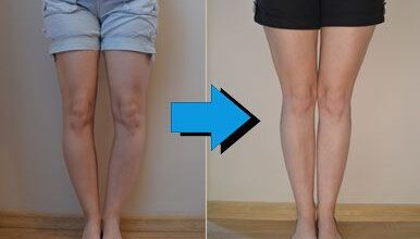 Photo of REMEDY FOR BOW LEGS WITHOUT THE NEED FOR SURGERY