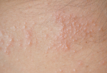 Photo of 11 NATURAL WAYS TO GET RID OF HEAT RASHES
