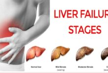 Photo of 6 BEST HOME REMEDY FOR LIVER FAILURE