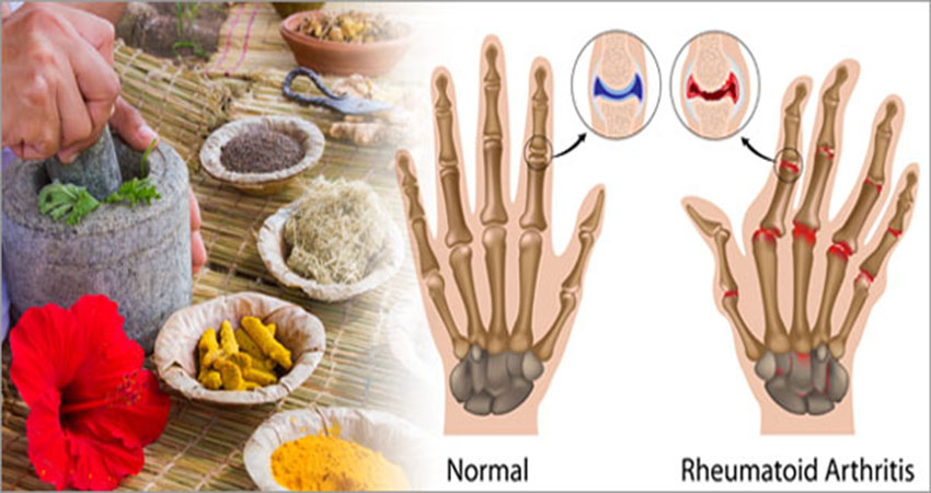 Photo of 9 Herbal Remedies For Treating Rheumatoid Arthritis
