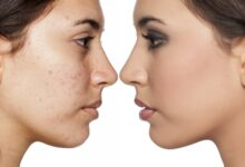 Photo of POOR HYGIENE HABITS THAT CAUSES SPOTS AND PIMPLES