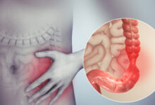 Photo of 6 NATURAL REMEDY FOR IRRITABLE BOWEL SYNDROME (IBS)