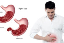 Photo of EARLY SYMPTOMS OF STOMACH ULCER TO WATCH OUT FOR