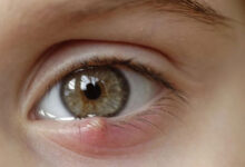 Photo of HERBAL REMEDY FOR EYELID CYST (CHALAZION)