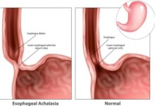 Photo of ACHALASIA: ALL YOU NEED TO KNOW