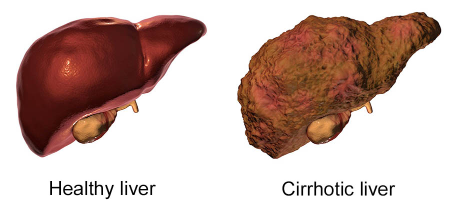 Photo of How to Prevent Cirrhosis of the Liver
