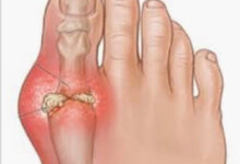Photo of 6 HOME REMEDY FOR GOUT
