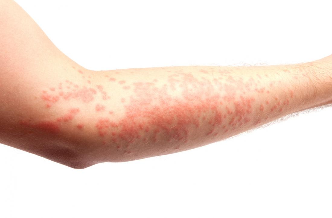 Photo of 10 HABITS THAT TRIGGERS HIVES (URTICARIA) AND REMEDY