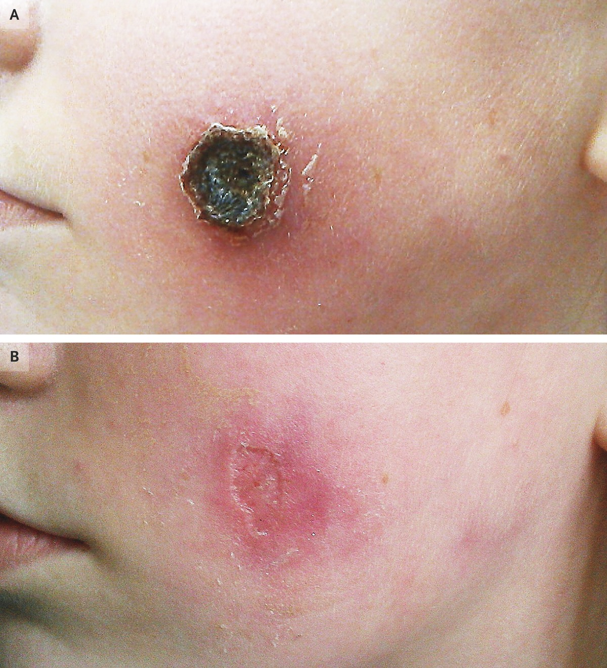 Photo of Cowpox Infection Treatment And Control