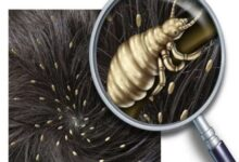 Photo of EFFECTIVE WAYS TO PREVENT HEAD LICE AT HOME