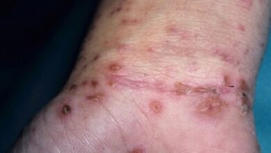 Photo of SCABIES NATURAL REMEDY, CAUSES, PREVENTION, SYMPTOMS
