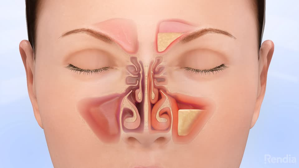 Photo of Facts About the Allergic Rhinitis
