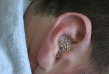 Photo of EFFECTIVE HOME REMEDY FOR EAR INFECTION THAT WORKS IN DAYS