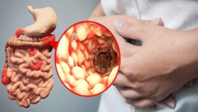 Photo of Treatment For Crohn's Disease (intestinal disorder)