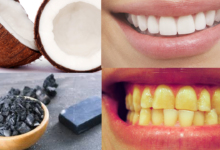 Photo of 7 WAYS TO GET WHITE TEETH IN 7 DAYS