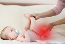 Photo of SUPER EFFECTIVE HOME REMEDY FOR DIAPER RASH THAT WORKS IN 2DAYS