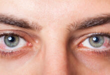 Photo of Quick Home Remedies for Conjunctivitis (Pinkeye)